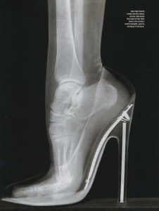 Bones of the foot while wearing high heels. Not all that different from 1908, after all!