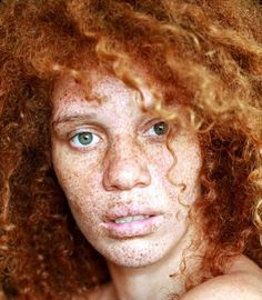 Image detail for -Black people with freckles? - Black Hair Media Forum - Page 1