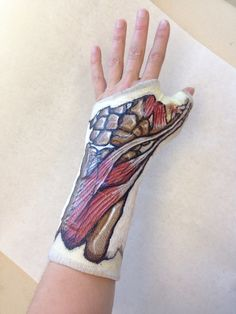 One of my friends had surgery on his hand and hand painted an exact replica of… Decorated Crutches, Broken Wrist, Arm Cast, Human Sculpture, Cast Art, Sticks And Stones, Surgery, Fashion Art, Hand Sewing