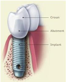 Dental Implants after Tooth Extraction