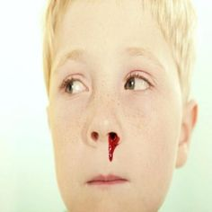 12 Best Home Remedies For Bloody Noses In Children