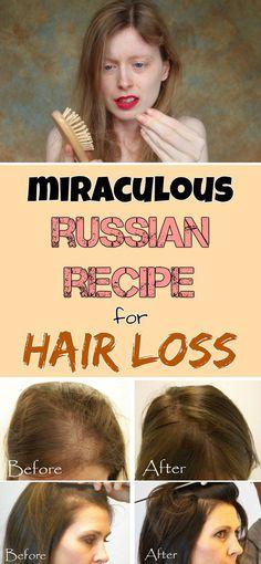 Increase the hair volume naturally and treat naturally the hair loss
