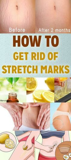 How to Get Rid of Stretch Marks Naturally