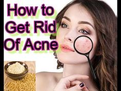 How to Get Rid of acne l how to remove pimples l acne remedies l how to ... Pimple Marks, How To Get Rid Of Pimples, Acne Remedies, Acne Treatment
