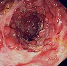 Crohn's disease as seen through an endoscope