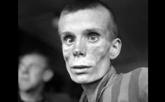 An emaciated 18-year-old Russian girl looks into the camera lens during the liberation of Dachau concentration camp in 1945. Dachau was the first German concentration camp, opened in 1933. More than 200,000 people were detained between 1933 and 1945, and 31,591 deaths were declared, most from disease, malnutrition and suicide. Unlike Auschwitz, Dachau was not explicitly an extermination camp, but conditions were so horrific that hundreds died every week.