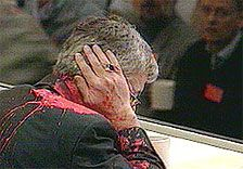 Joschka Fischer nach dem Farbbeutelanschlag 1999