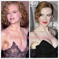 before after lips Nicole Kidman Plastic Surgery Before and After Photos Breast Implants Botox and . Nicole Kidman Plastische Chirurgie Vor und nach Fotos Brustimplantate Botox- und Lippeninjektionen - www. Celebrities Before And After, Celebrities Then And Now, Famous Celebrities, Nicole Kidman, Bad Plastic Surgeries, Beautiful Women Over 50, Celebs Without Makeup, Celebrity Plastic Surgery, Lip Injections
