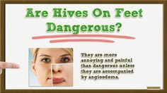 Hives on Feet - Hives on Feet After Walking - Hives on Feet After Shower | Hives on Legs