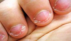 Haz tu propio ESMALTE para dejar de MORDERTE las uñas