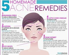 homemade-acne-remedies-recipes