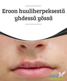 Eroon huuliherpeksestä yhdessä yössä #Huuliherpeksen aiheuttaa #herpesvirus, joka on herkästi tarttuva ja leviää helposti kosketuksen #välityksellä. #Luontaishoidot