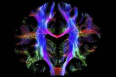 2016award01 若年成人の健康な脳/トラクトグラフィー|HEALTHY HUMAN BRAIN FROM A YOUNG ADULT, TRACTOGRAPHY PHOTOGRAPH BY ALFRED ANWANDER,MPI-CBS