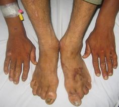 Feet and hands of one suffering from Neuropathy.