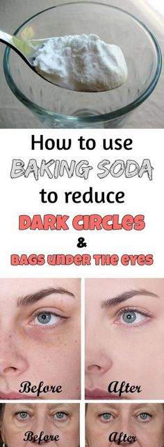 One of the most common beauty problems women face these days is black circles under their eyes. There are manu reasons which can lead to develop those disturbing under-eye bags or black spot. Some researches dedicated that tiredness is the main cause, others blame genetics