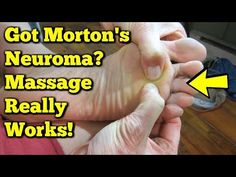 Try Mortons Neuroma massage to help heal your feet! Self-massage is the ultimate way to avoid Morton's Neuroma Surgery! Try these exercises for pain relief. Self Massage, Foot Massage, Mortons Neuroma Treatment, Morton's Neuroma, Foot Exercises, Stretches, Foot Remedies, Foot Pain Relief, Home Remedies