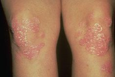 rash on elbows and knees