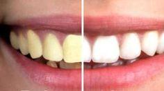 L'huile de coco : l'allié pour des dents blanches Hygiene, Coconut Oil, Convenience Store, Manicure, Homemade, Migraine, Physique, Nice, Beauty