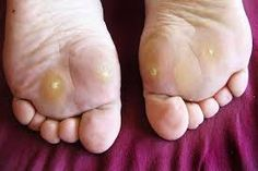 What Causes Corns on Toes, Feet, in Between Toes, What Causes Corns and Calluses | BeautyZion