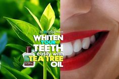 Teeth Whitening Home Remedies, Home Remedies for Yellow Teeth, Get Whiter Teeth at home, how to Get Whiter Teeth at home, How to whiten extremely yellow teeth at home, teeth whitening at home tips, teeth whitening at home methods, teeth whitening home rem #homeremediesforplaque #removingtartarfromteethathome