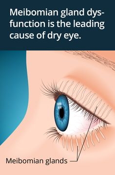 What you should know about meibomian gland dysfunction (MGD).