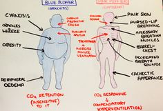 Blue bloaters and pink puffers. COPD, everyone! Med school revision.
