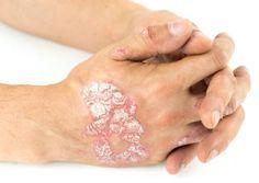 Psoriasis : 4 traitements de grand-mère qui soulagentnoté 3.6 - 16 votes Le psoriasis est une affection cutanée non contagieuse et bénigne liée au système immunitaire. De mauvais messages sont envoyés au cerveau, les cellules commencent à se renouveler plus vite et une inflammation se crée. La peau s'épaissit, causant ainsi l'apparition des fameuses plaques … More