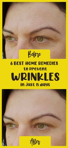 Face Wrinkles, Prevent Wrinkles, Baking Soda Mask, Home Remedies For Wrinkles, How To Fade, Vitamin E Capsules, Face Treatment, Younger Looking Skin, Organic Coconut Oil