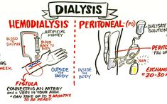 peritoneal dialysis nurse jobs General Archives - Page 4 of 12 - United Dialysis Center Kidney Dialysis, Polycystic Kidney Disease, Chronic Kidney Disease, Dialysis Humor, Dialysis Diet, Diálisis Peritoneal, Peritoneal Dialysis, Nursing School Notes, Nursing Schools