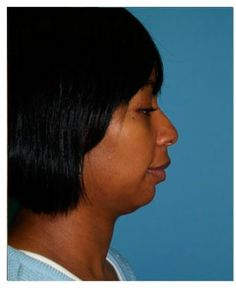 Chicago Chin Augmentation Before and After Photos - Naperville Plastic Surgery Photo Gallery - Dr. Facial Implant, Chin Implant, Plastic Surgery Photos, Need To Know, Photo Galleries, Things To Come, Health, Chicago, Gallery