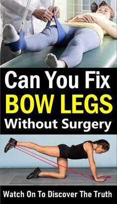 Leg Strengthening Exercises, Leg Exercises, One Legged Squat, Genu Varum, Bow Legged Correction, Knock Knees, Human Babies, How To Lose Weight Fast, Surgery
