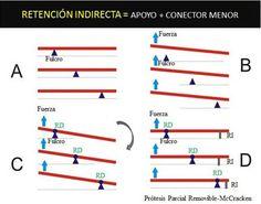Imagen 1. Esquema de palancas que explica cómo funciona la retención indirecta, deteniendo el giro de la viga mediante un apoyo o tope, lo más lejano posible de la línea de fulcro. RI = Retención Indirecta /RD= Retención Directa