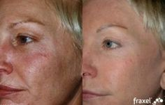 Attain your best complexion yet with a Fraxel laser face resurfacing treatment from the...