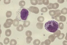 Medical Laboratory and Biomedical Science: Weekend Haematology Challenge