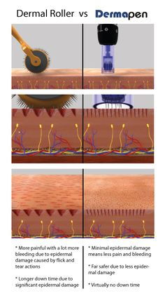 Microneedling and its benefits. Call in to make an appointment for a consult.