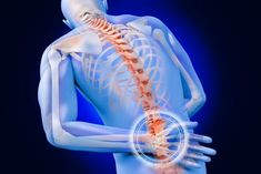 Migraine Pain & Lumbar Herniated Disc Treatment in El Paso, TX Peripheral Neuropathy, Leg Pain, Back Pain, Spinal Fusion Surgery, What Causes Arthritis, Remedial Massage, Migraine Pain, Ankylosing Spondylitis, Natural Remedies