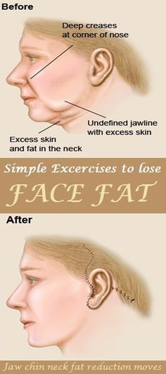 7. Jaw release: This jaw exercise will help you to get high cheekbones and sharp jaw line. It will also help in reducing