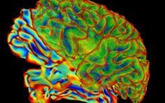 A new initiative gets us closer to understanding how our brain cells communicate #TEAMGENOMICS @deerwalkinc
