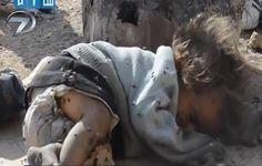 Suriyeli çocuk , bezi kimbilir kaç gündür değiştirmemiş :((((((((