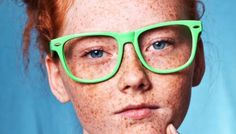 Know Everything about Freckles