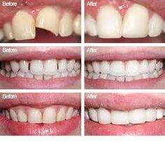 26 best dental bonding greenville images on pinterest dental dental bonding solutioingenieria Gallery