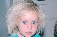Uncombable hair syndrome, also known as Pili trianguli et canaliculi, Spun-glass hair, and Cheveux incoiffables, is a rare structural anomaly of the hair with a variable degree of effect. It was discovered in the 1970s. It becomes apparent from as little as 3 months to up to 12 years.