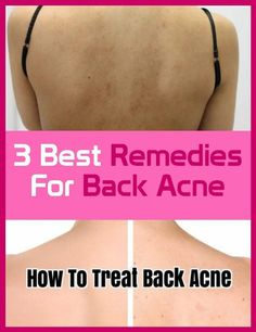 3 Best Remedies for Acne Health And Fitness Tips, Health And Beauty, Health Remedies, Home Remedies, Back Acne Remedies, Body Acne, Dry Well, Acne Breakout, How To Treat Acne