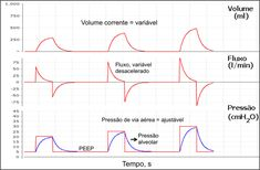 Ventilación mecánica Manual - Control Mecánica respiratoria durante la…