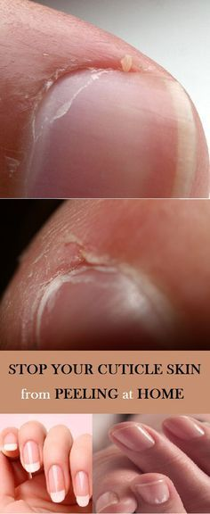 Stop Your Cuticle Skin from Peeling This happens to me a lot so it will be really helpfu! The post Stop Your Cuticle Skin from Peeling & beauty tricks appeared first on Perconel Care . Peeling Cuticles, Peeling Nails, Dry Cuticles, How To Remove Cuticles, Belleza Diy, Tips Belleza, Beauty Care, Diy Beauty, Beauty Hacks