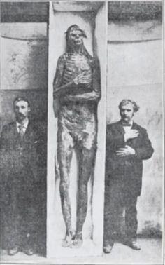The Ancient Giants With Six-Fingers and Double Rows of Teeth | Humans Are Free