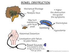 Even artichokes have hearts., Nursing:  Bowel Obstruction