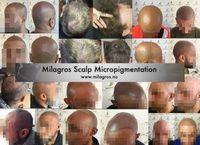 Scalp micropigmentation, SMP, micro hair, hair tattoo Scalp Micropigmentation, Hair Tattoos, Easter Eggs