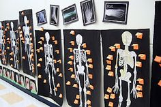 Printable lifesize skeleton.