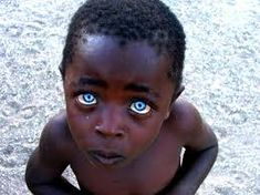 - This photo is real. The blue eyes and dark skin probably represents. Pretty Eyes, Cool Eyes, Beautiful World, Beautiful People, People With Blue Eyes, Sapphire Eyes, Clear Eyes, Stunning Eyes, Amazing Eyes
